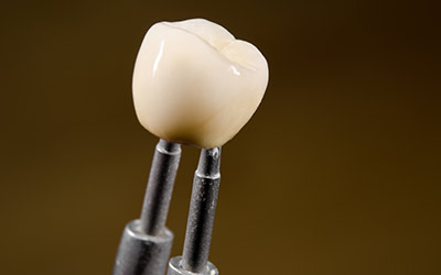 Dental Crowns Services Gurgaon