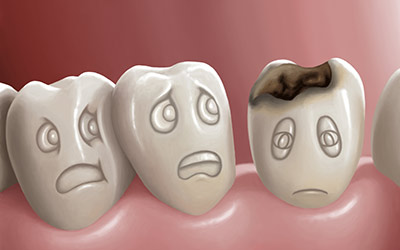 Causes of Dental Decay, Enamel and Dentine