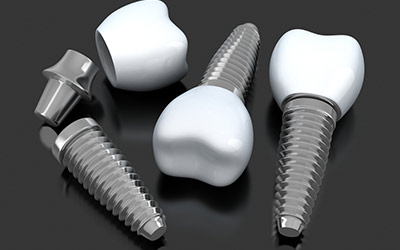 Teeth Implants Services Gurgaon