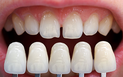 Dental Veneers Services in Gurgaon