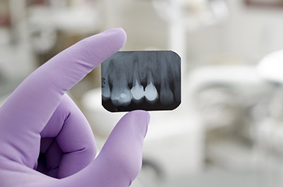 Dental Digital X-Rays gurgaon